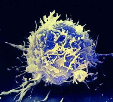 lymphocyte T